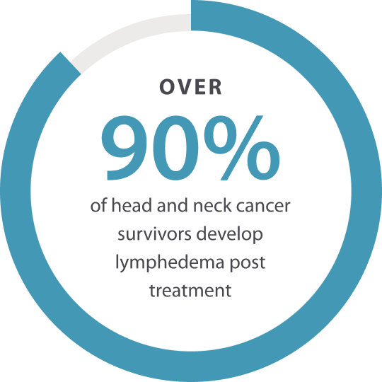 90% of head and neck cancer survivors develop lymphedema post treatment