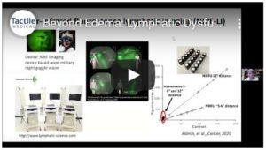 beyond edema lymphatic disorders