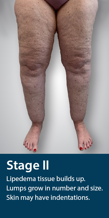 Stage Two of Lipedema